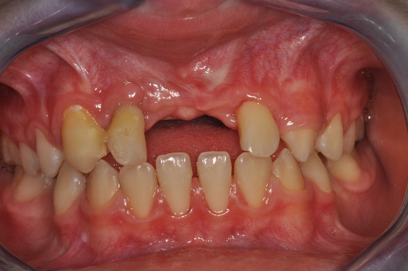 Autotransplantacja jako metoda autogennej rekonstrukcji ubytków wyrostka zębodołowego